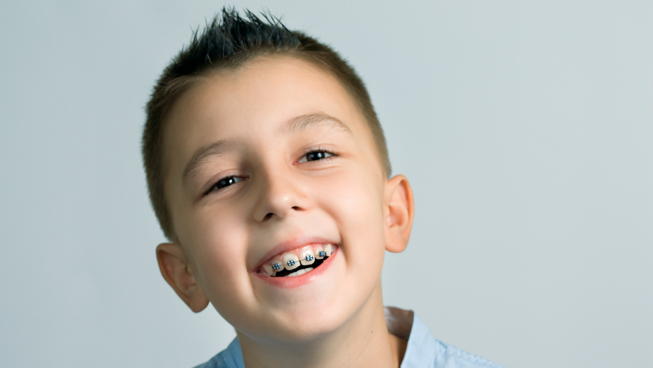 Children Orthodontics @ New Millennium Dental