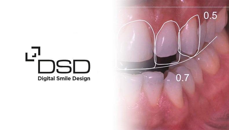 Certified Digital Smile Design Clinic In Melbourne New Millennium Dental