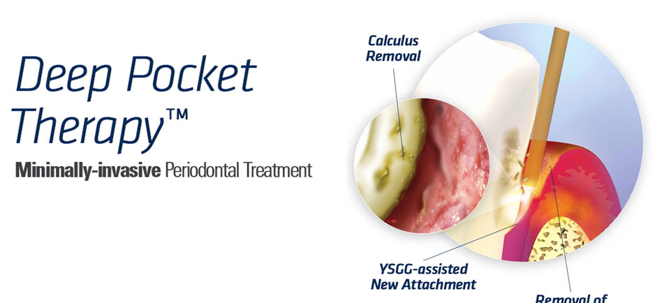 Deep Pocket Therapy™ Periodontal